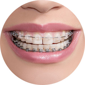 self-ligating-braces-img